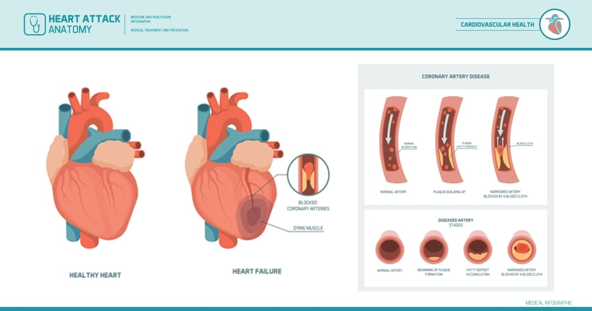 coronary-arteries-heart-attack-illustration