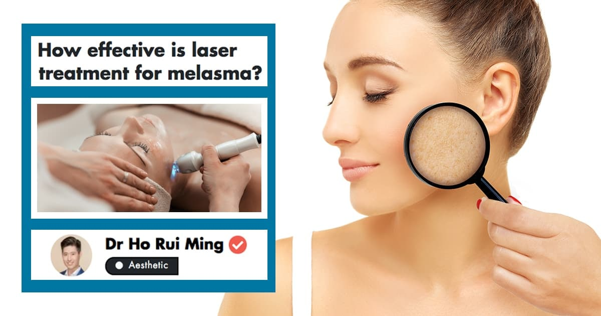 This Doctor Shares Tips On How To Manage And Treat Melasma In Singapore undefined