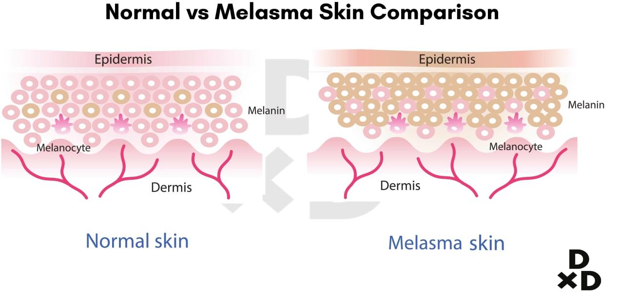 normal-melasma-skin-comparison-illustration