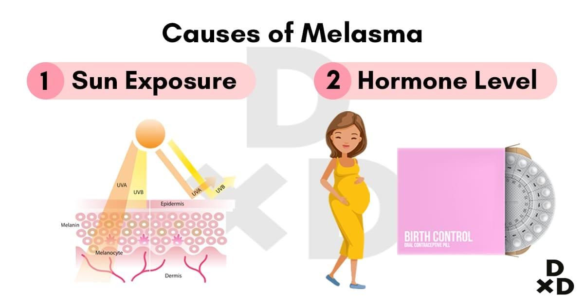 causes-melasa-illustration