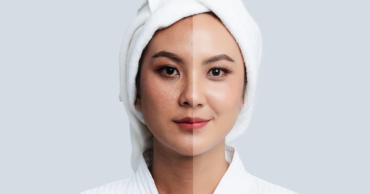 asian-woman-melasma-treatment-comparision
