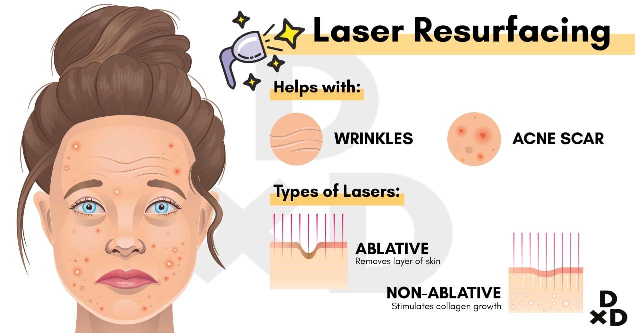 laser-resurfacing-function-type