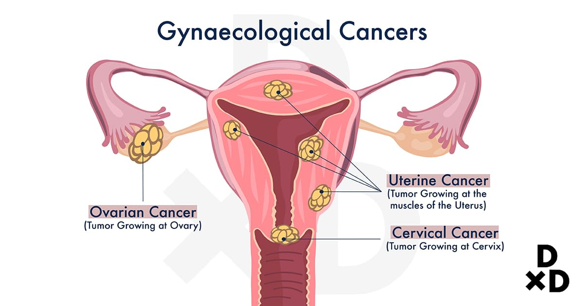 illustration-of-gynaecological-cancers