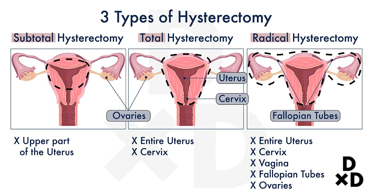 illustration-on-the-types-of-hysterectomy