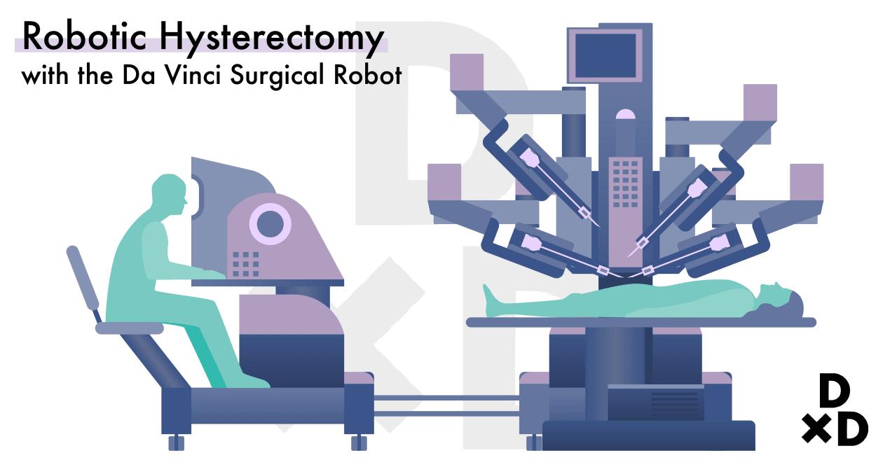 illustration-on-robotic-hysterectomy