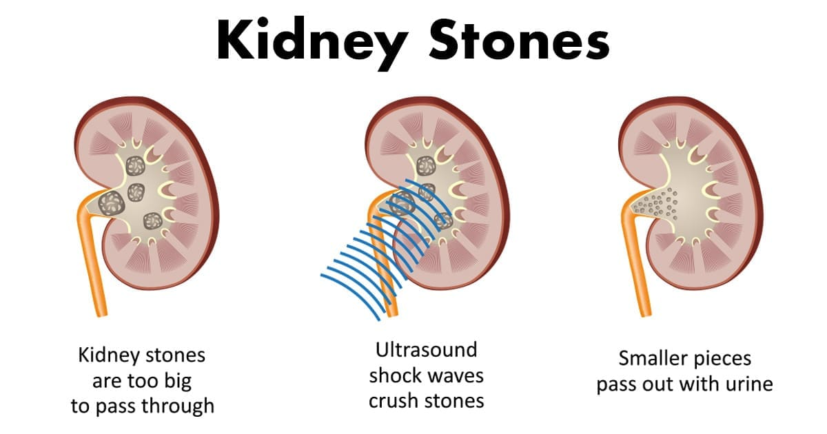 How Our Diets Today Are Causing Kidney Stones