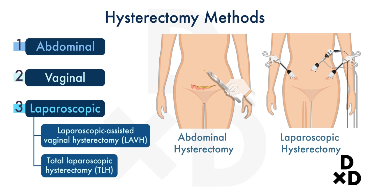 illustration-of-methods-of-hysterectomy