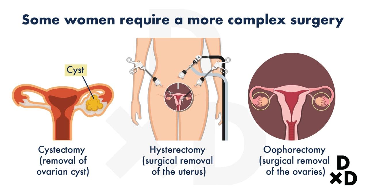 complex-surgeries-for-endometriosis