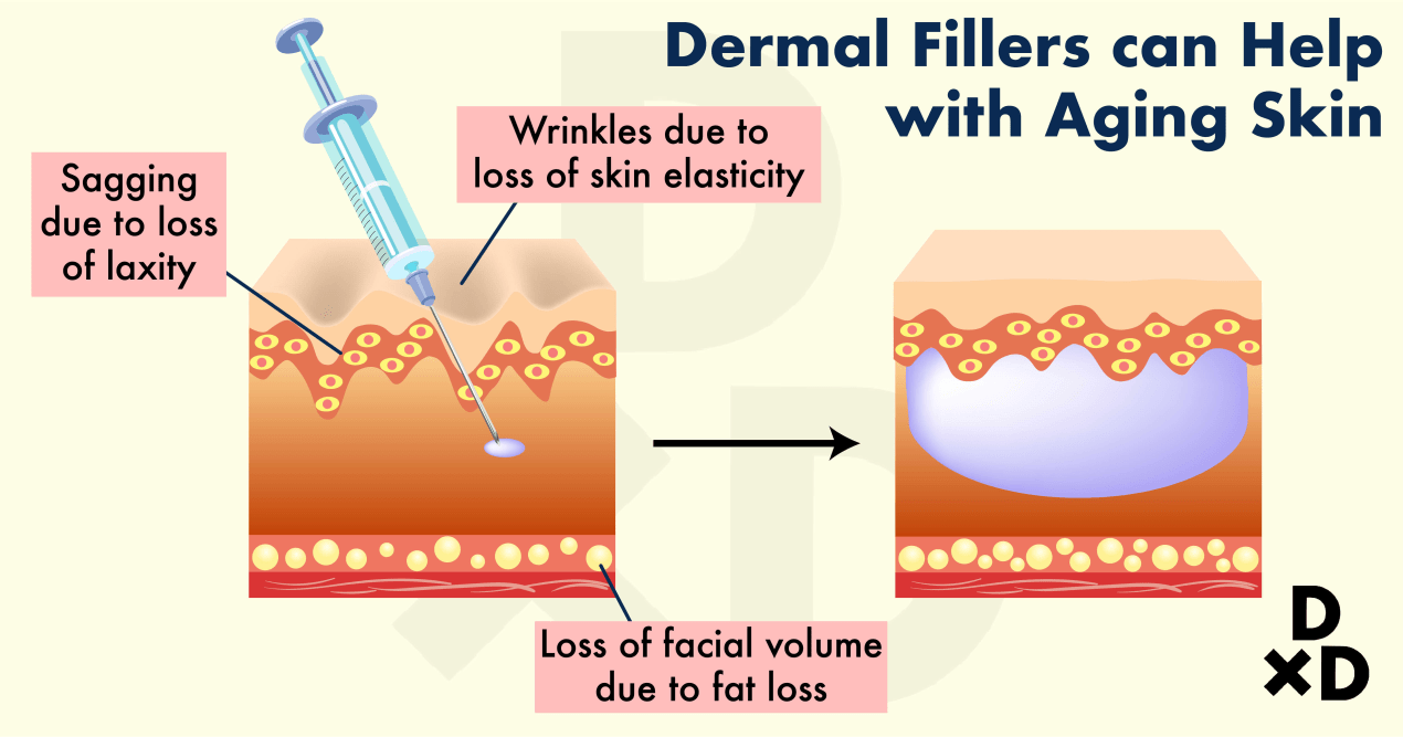 botox-vs-filler_how-do-dermal-fillers-work