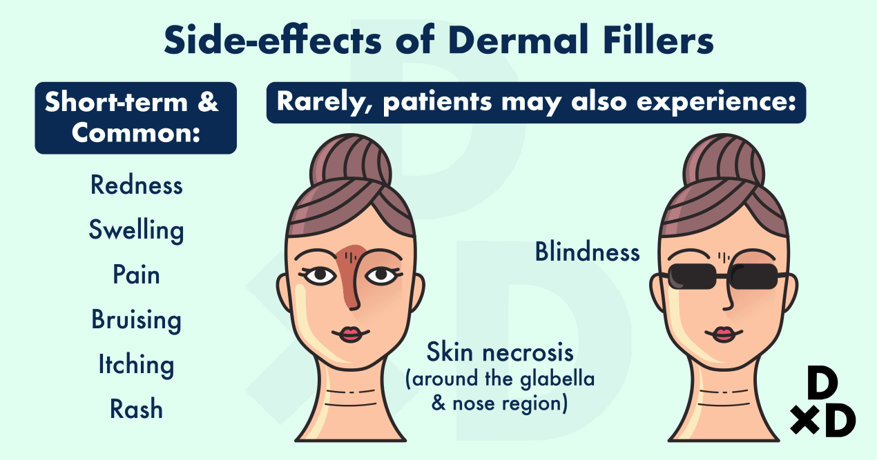 botox-vs-filler-side-effects-of-dermal-fillers