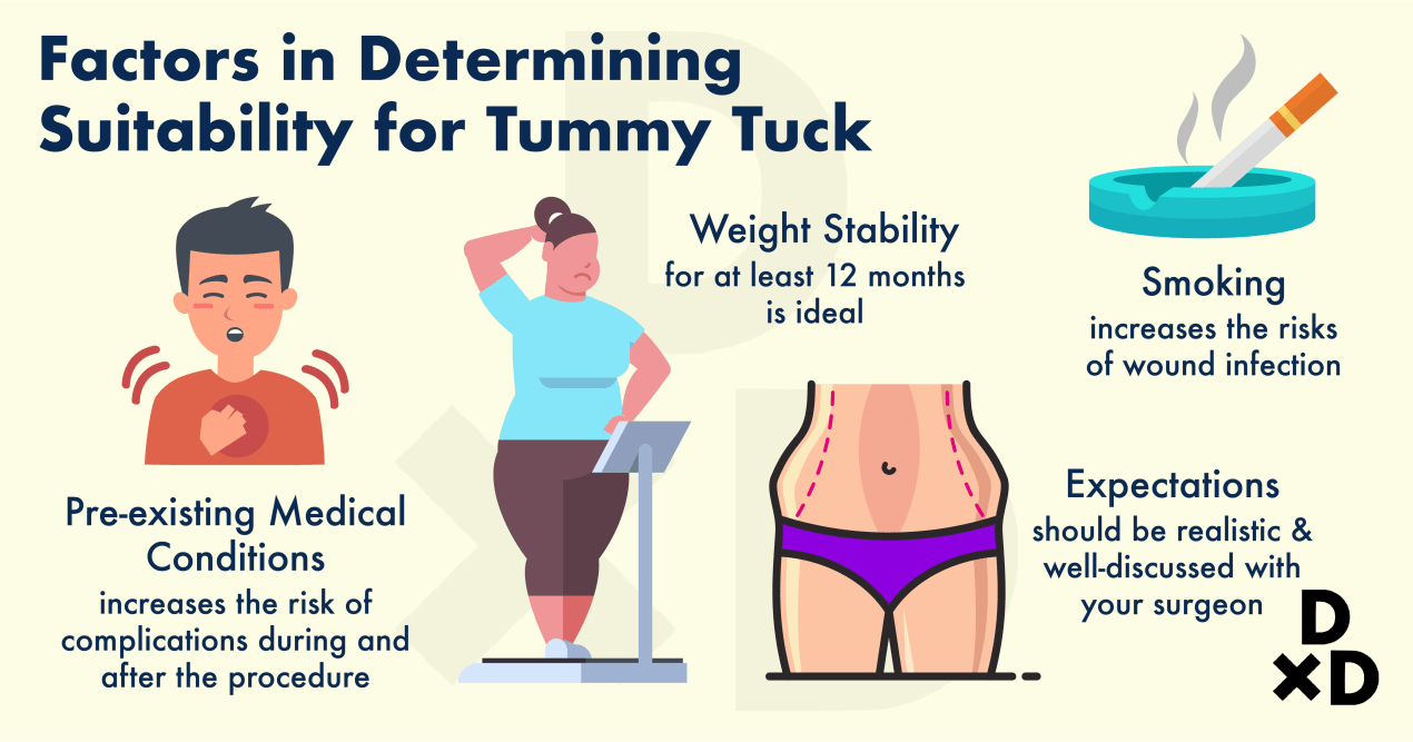 abdominoplasty-factors-to-determine-suitability-for-tummy-tuck