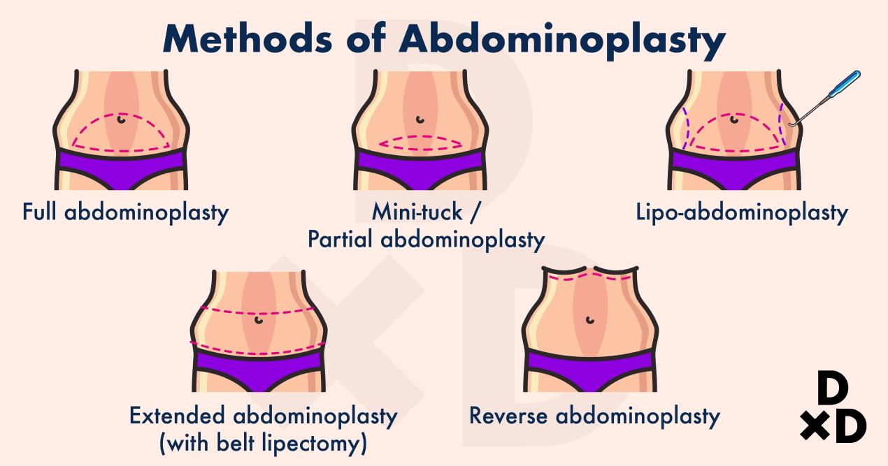 abdominoplasty-methods-of-tummy-tuck