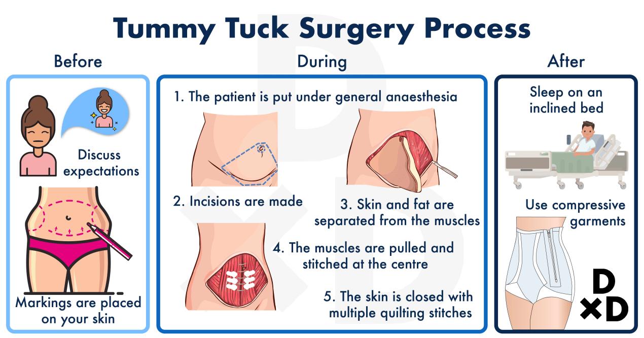 abdominoplasty-tummy-tuck-journey