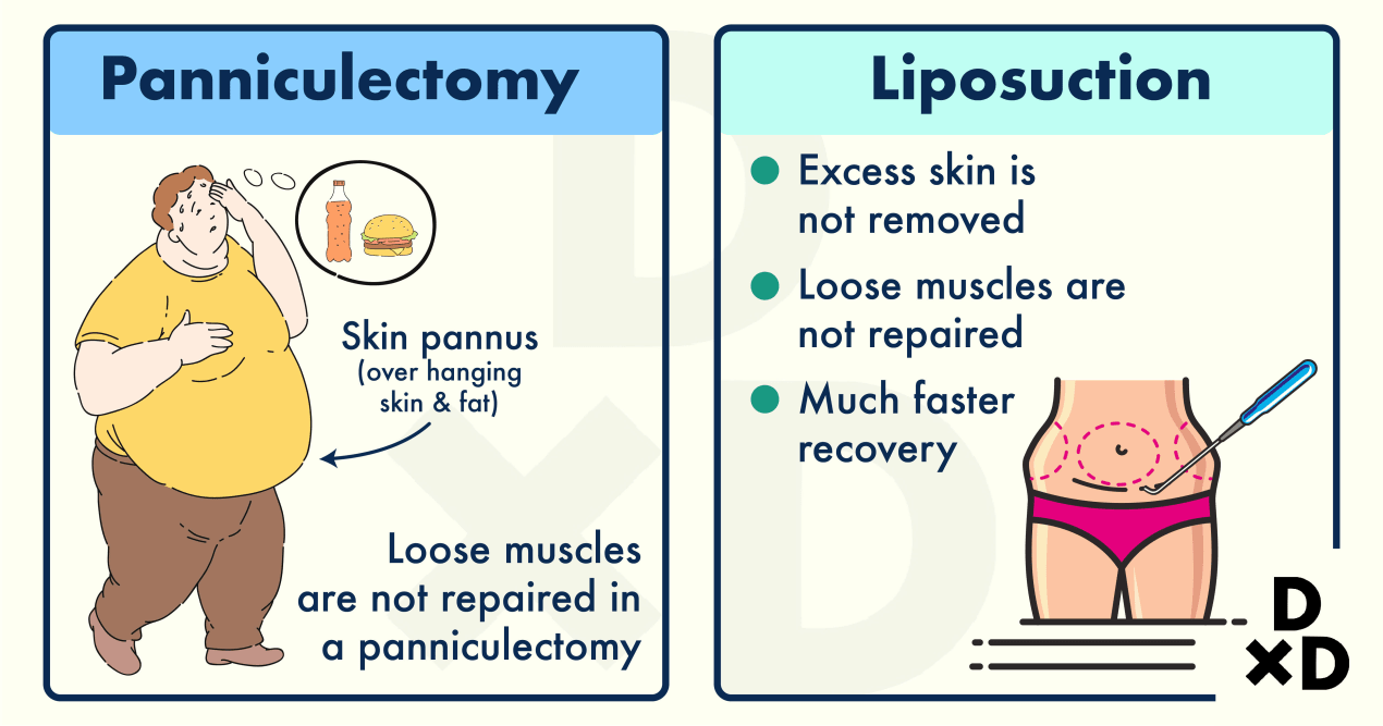 abdominoplasty-panniculectomy-and-liposuction