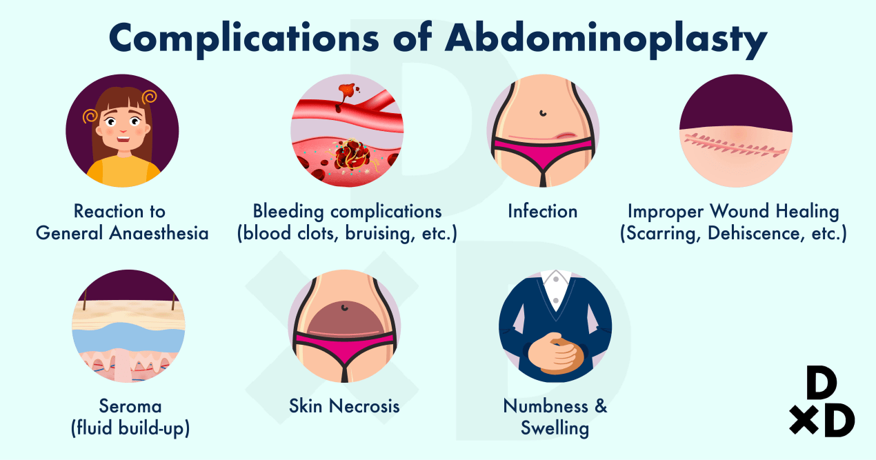 abdominoplasty-complications-of-tummy-tuck