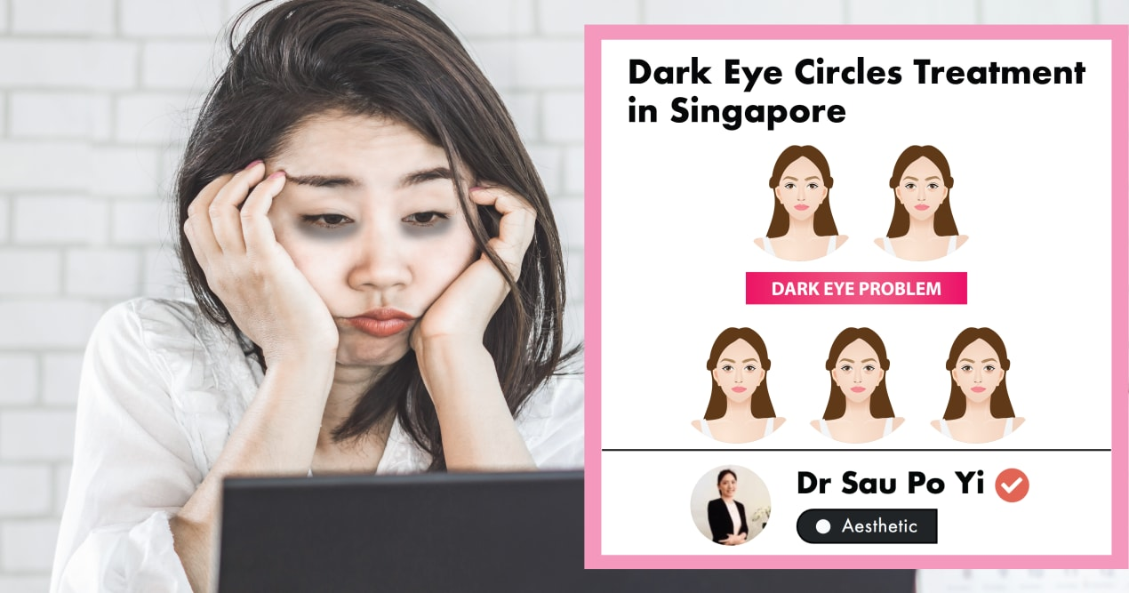 The Ultimate Guide to Dark Eye Circle Treatments in Singapore (2020) undefined