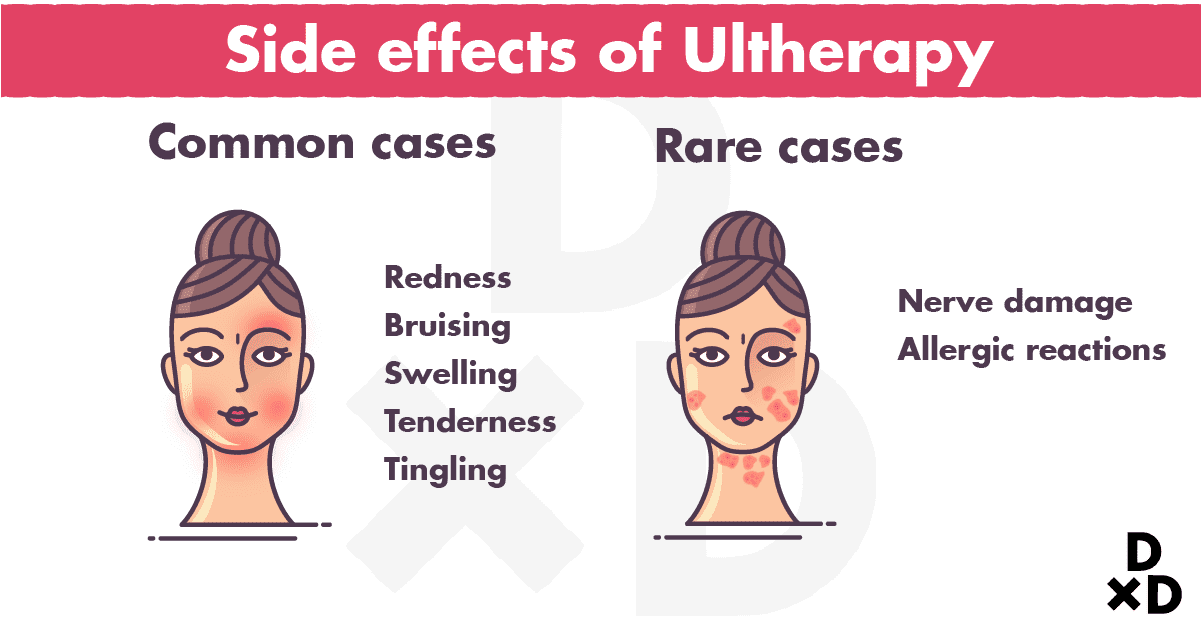 side-effects-ultherapy