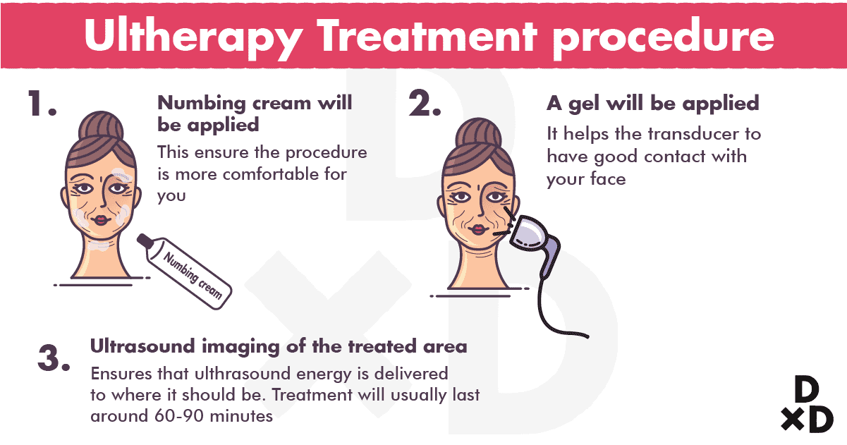 ultherapy-treatment-procedure