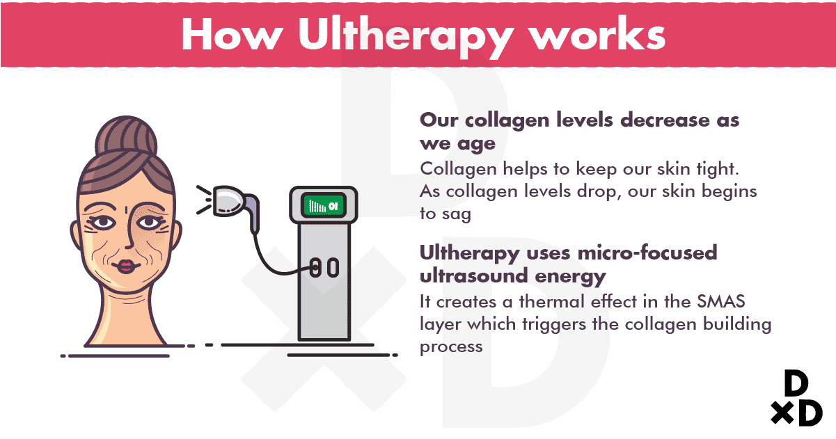 how-ultherapy-works