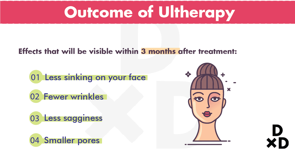 outcome-of-ultherapy