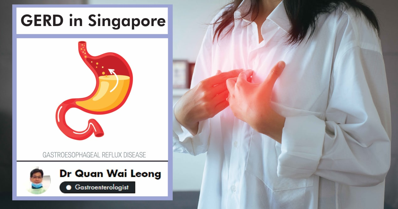 A Complete Guide To Gastroesophageal Reflux Disease (GERD) In Singapore undefined