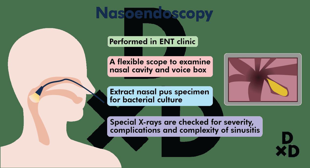 nasoendoscopy