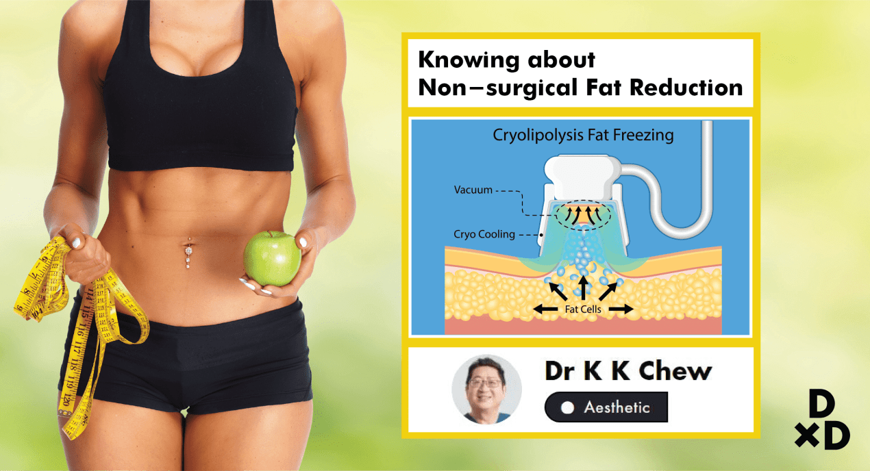 The Essential Guide To Non-surgical Fat Reduction In Singapore (2019) undefined