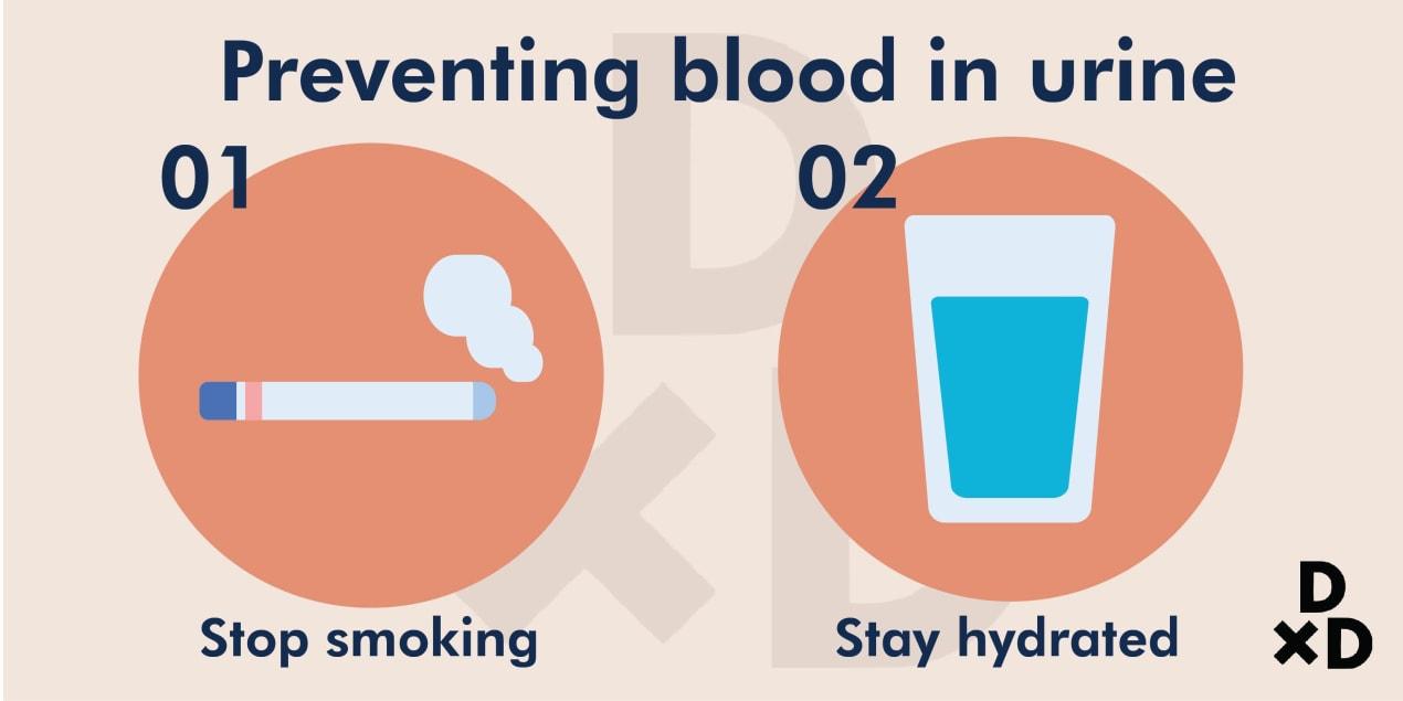 preventing-blood-in-urine