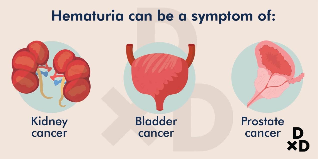 hematuria-can-be-a-symptoms-of