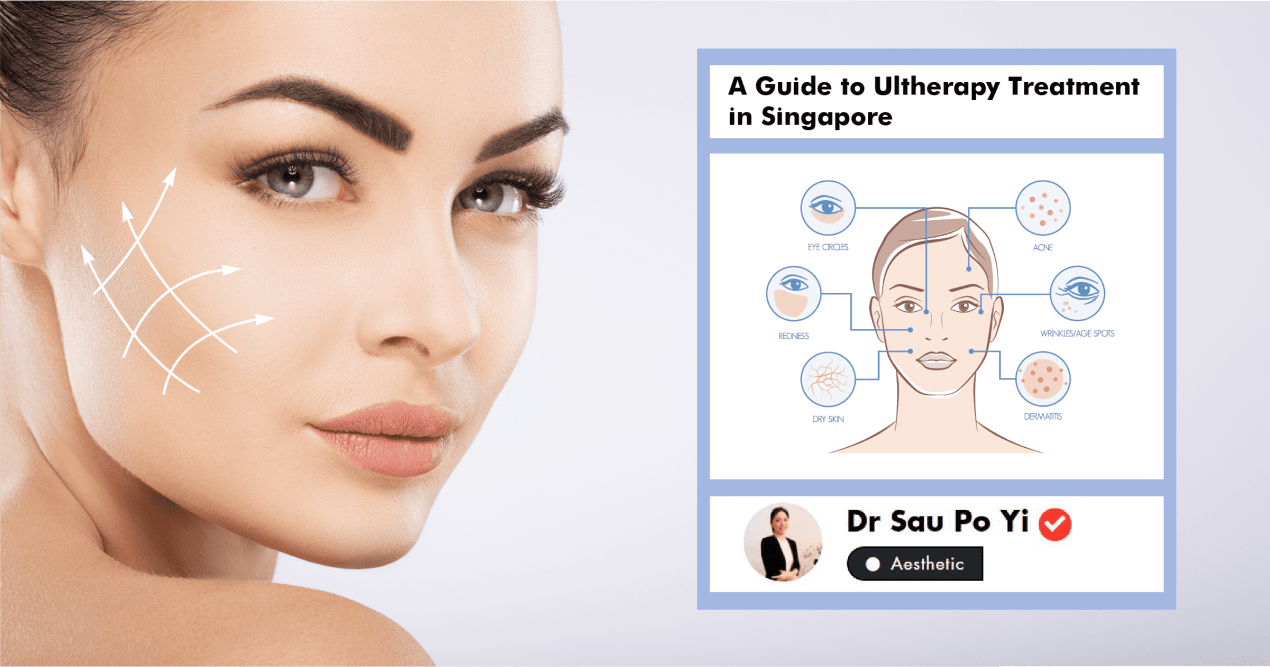 A Complete Guide To Ultherapy Treatment In Singapore (2019) undefined