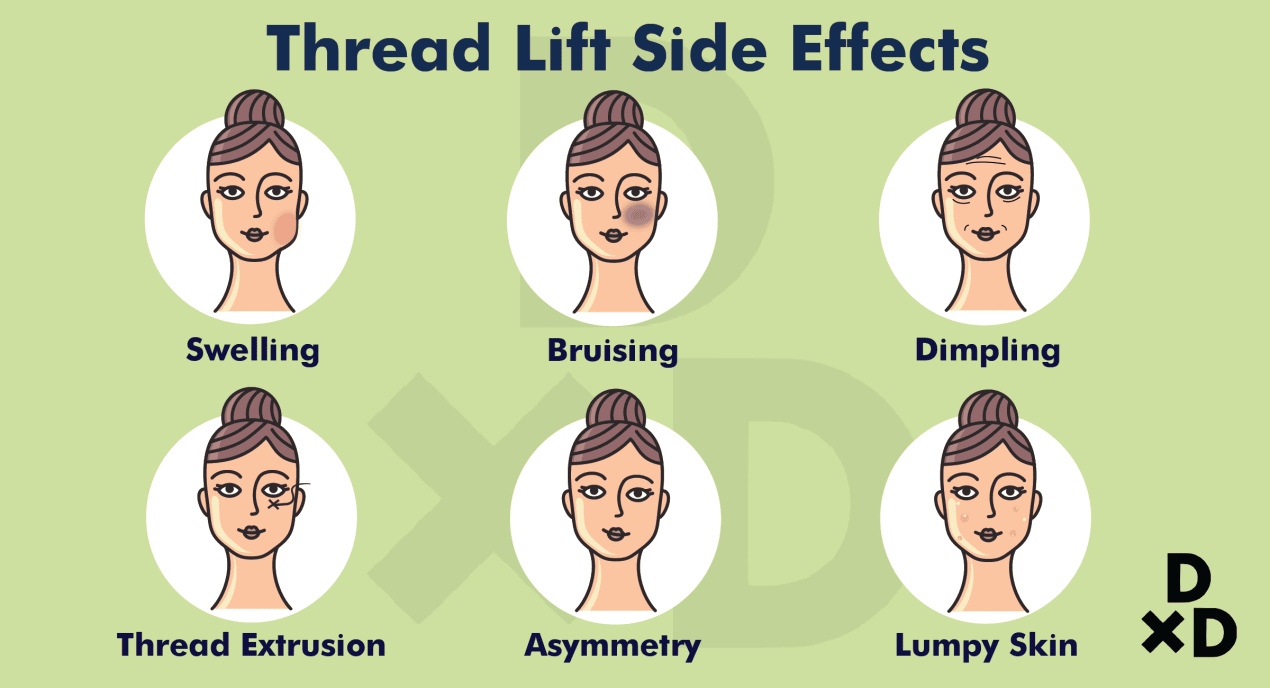 thread-lift-side-effect