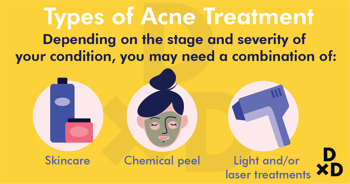 types-of-acne-treatment