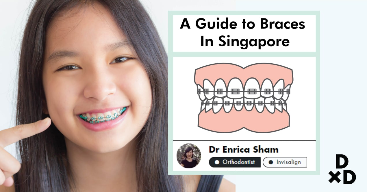 A Complete Dummies' Guide to Braces in Singapore (2019) undefined