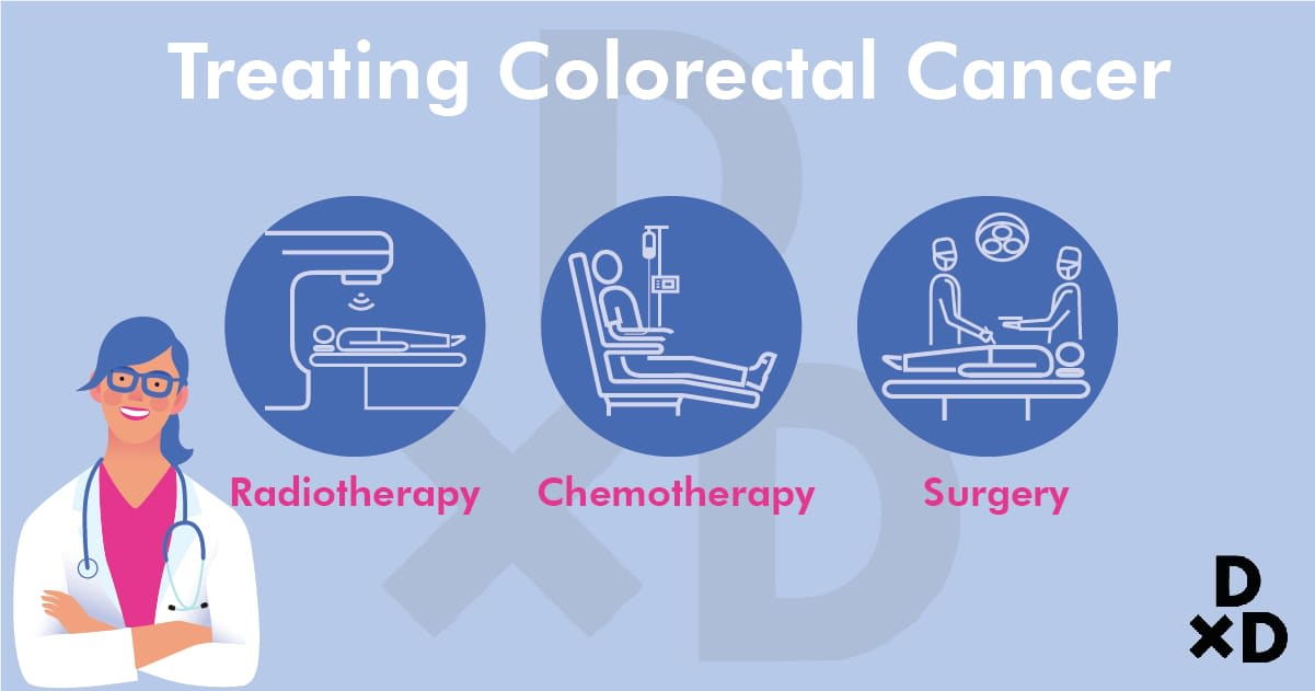 treating-colorectal-cancer