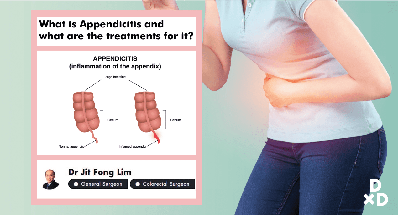 What Should You Do If You Have Appendicitis? undefined