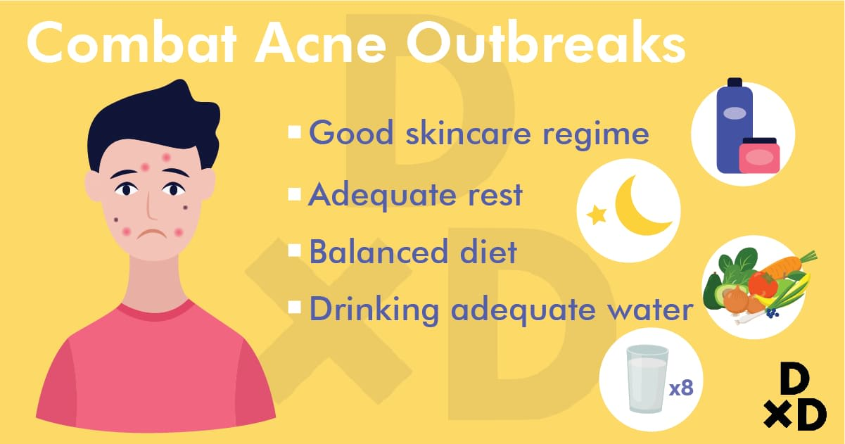 combat-acne-outbreaks