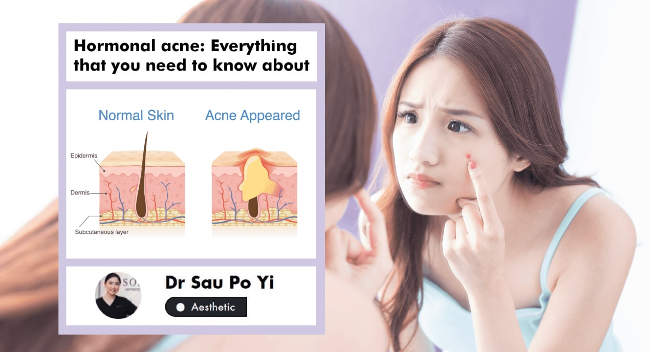 All You Need To Know About Hormonal Acne: A Singaporean Aesthetic Doctor Explains undefined