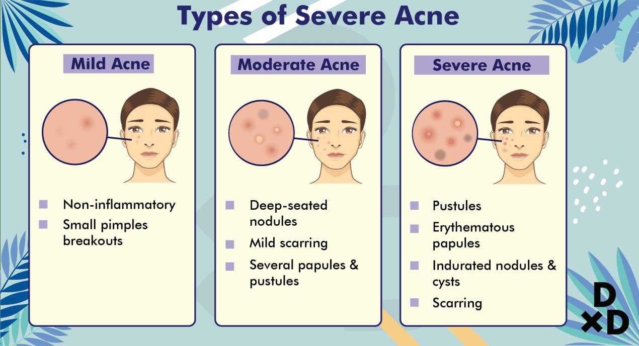types-severe-hormonal-acne