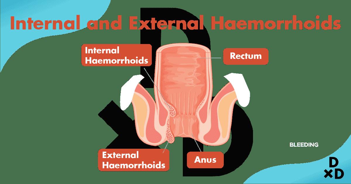 internal-external-haemorrhoids
