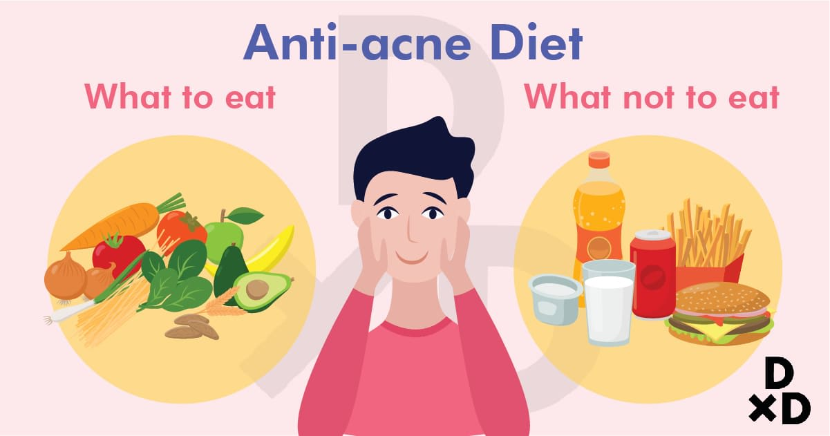 preventing-acne-with-anti-acne-diet