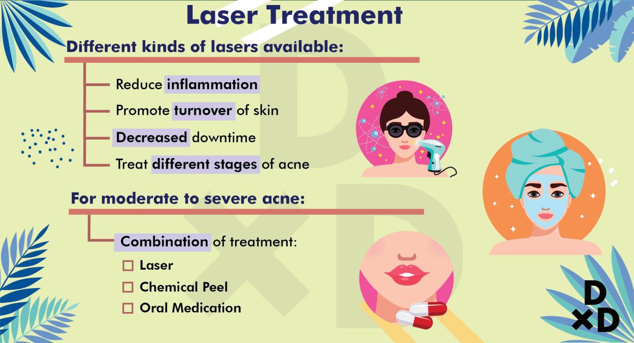 laser-treatment-hormonal-acne