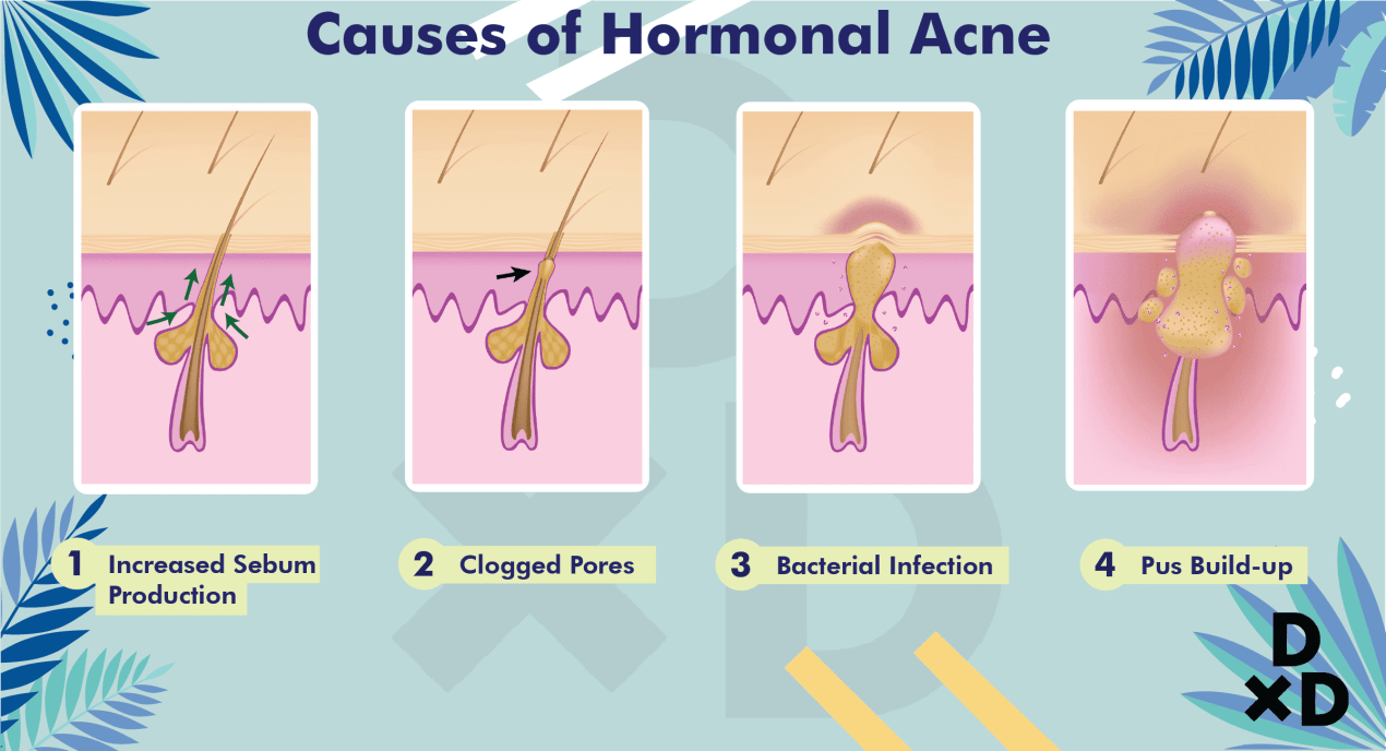 causes-hormonal-acne