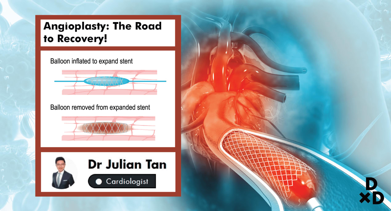 Angioplasty: The Road To Recovery undefined