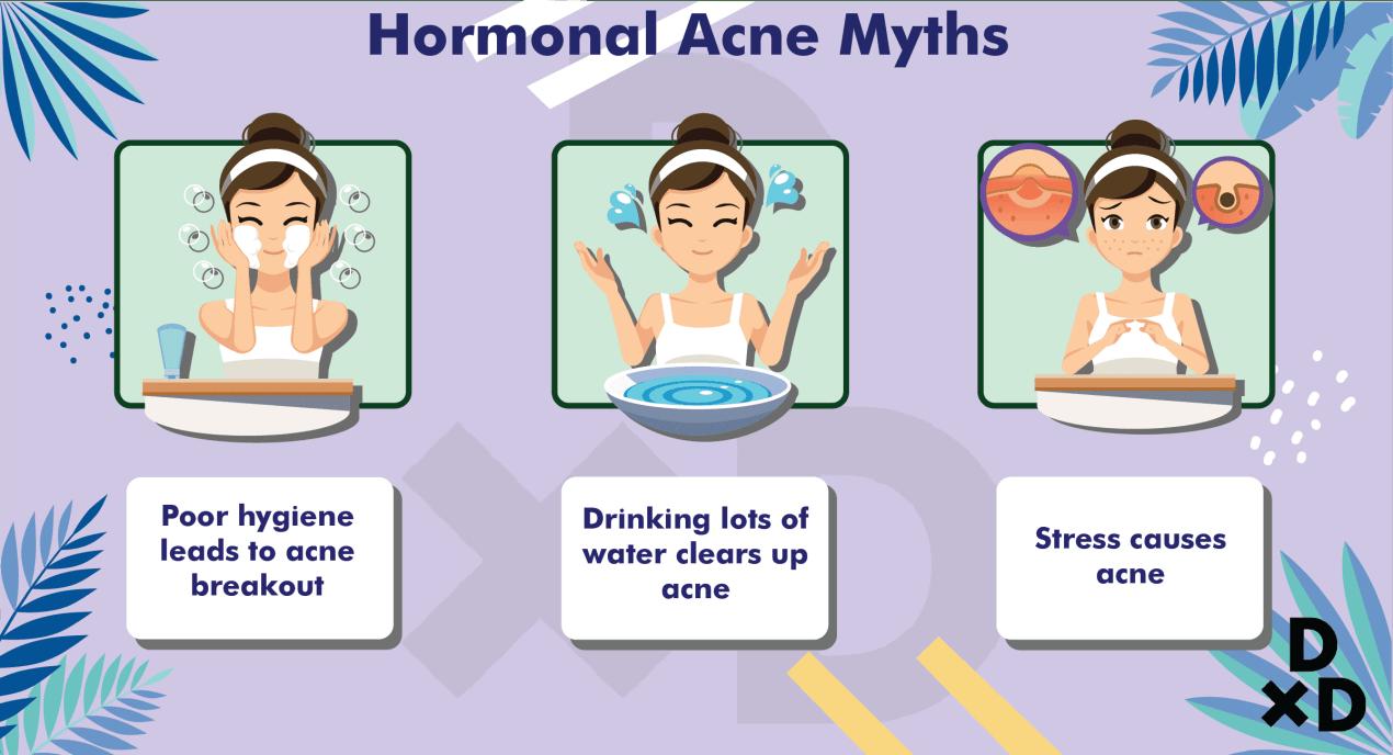 hormonal-acne-myth