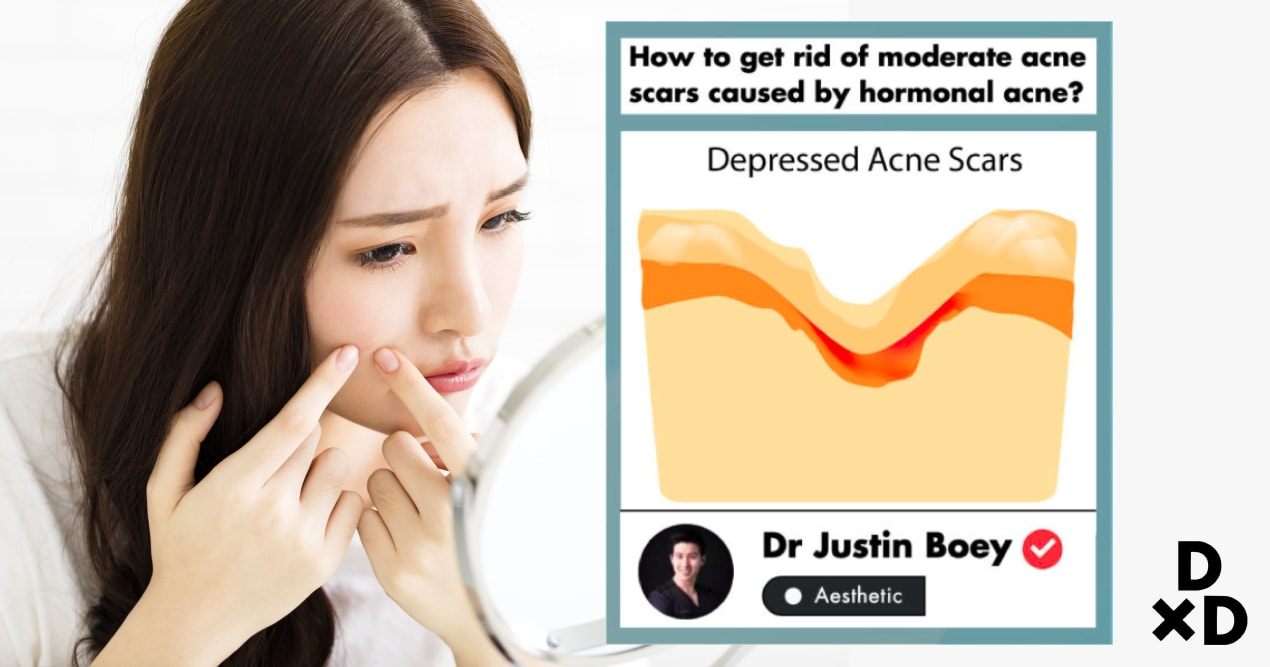 Guide To Best Acne Scar Treatments In Singapore (2019) undefined