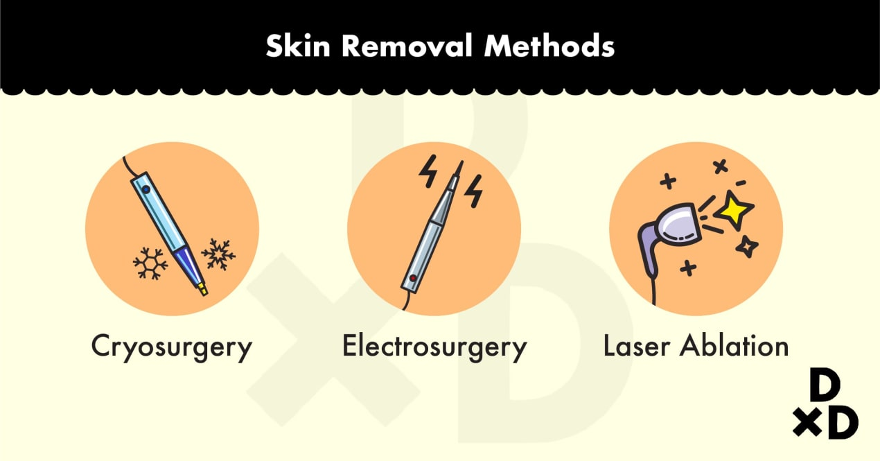 skin-tag-removal-methods
