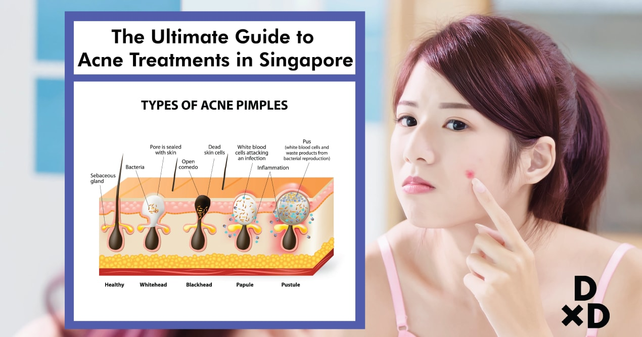 The Ultimate Guide to Acne Treatments in Singapore (2019) undefined