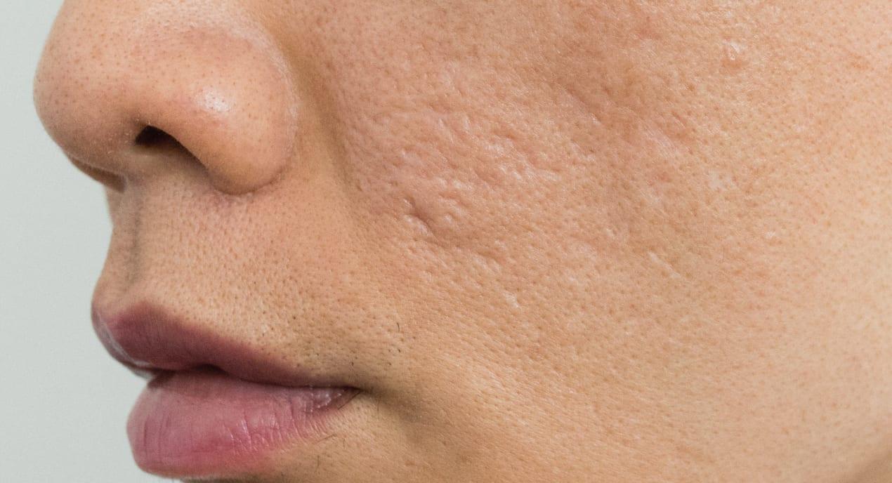 improve-after-acne-scar-treatment