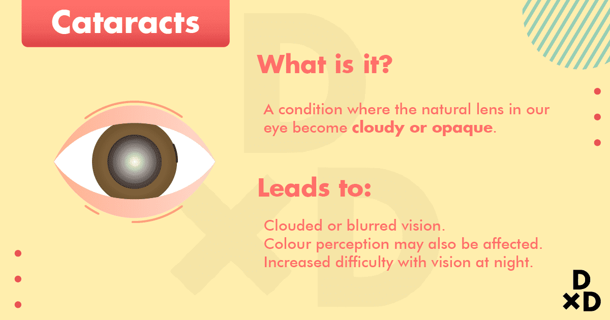 what-cataract