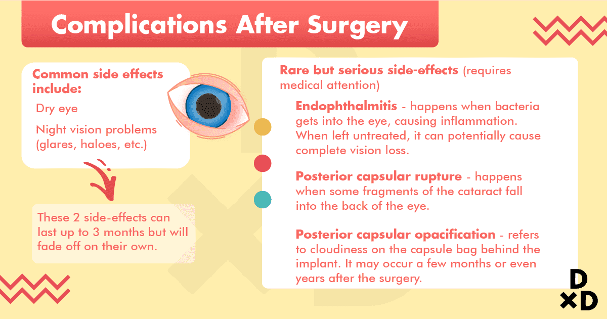 side-effects-cataract